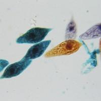 Spirogyra (Algae)